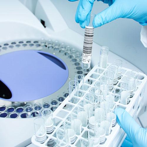 Hormonski test iz sline