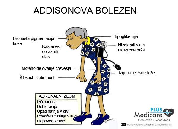 Addisonova bolezen