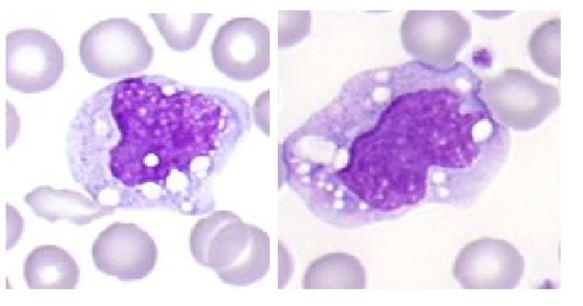 Monocit levkocit. Poleg so eritrociti.