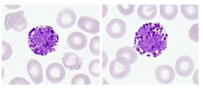 Bazofilec levkocit. poleg so eritrociti.