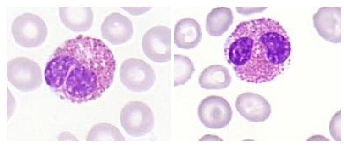 Eozinofilec levkocit. Poleg so eritrociti.