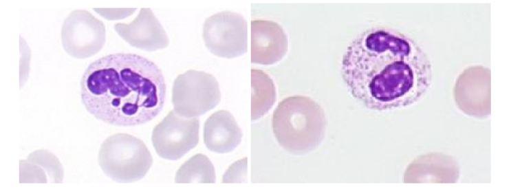 Segmentirani nevtrofilec - levkocit. Poleg so eritrociti.