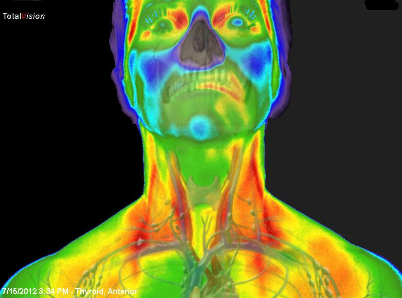 Medicinska termografija