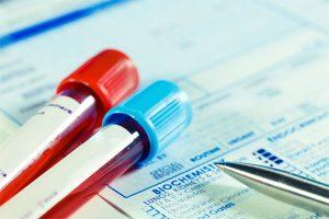 Najpogostejše laboratorijske preiskave